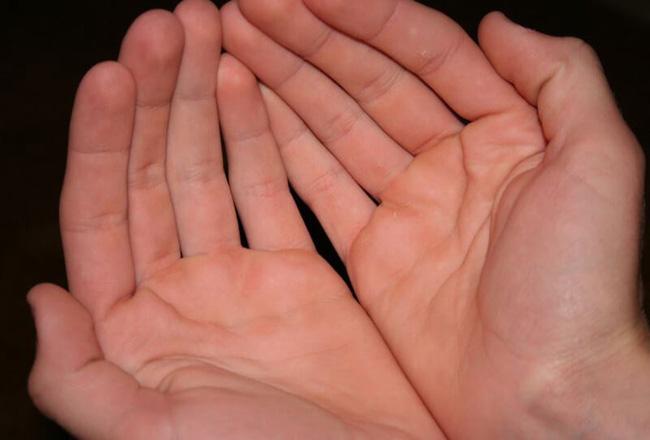ngứa lòng bàn tay
